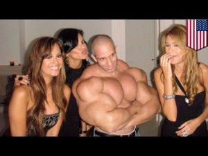 Synthol Freaks Get Fake Muscles The Dumbest Way