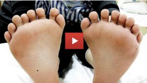 People Born With Mysterious Extra Body Parts